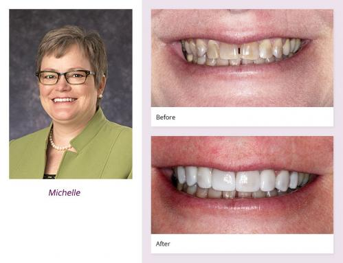 Dentist in Hopkins, MN -