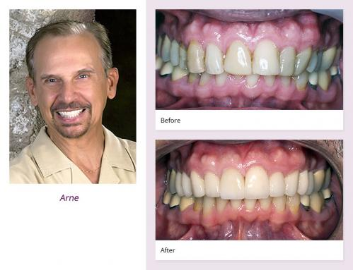 client-Arny-before-after