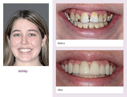 client-Ashley-before-after