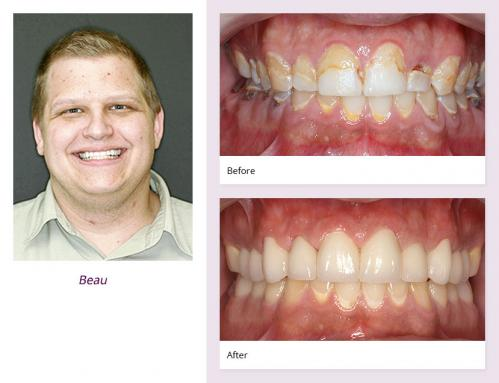 client-Beau-before-after