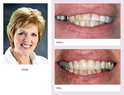 client-Inna-before-after