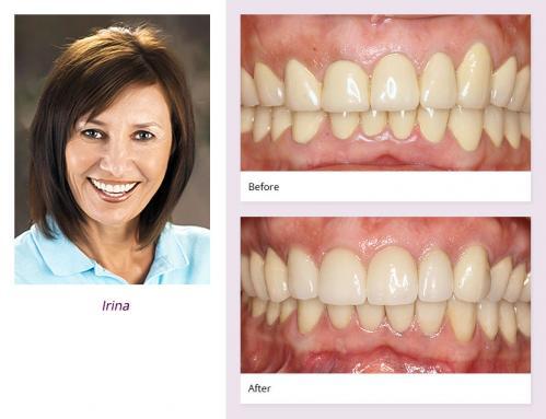 client-Irina-before-after