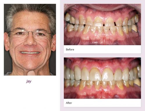 client-Jay-before-after