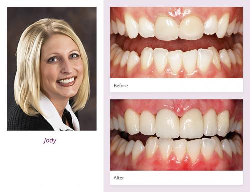 client-Jody-before-after