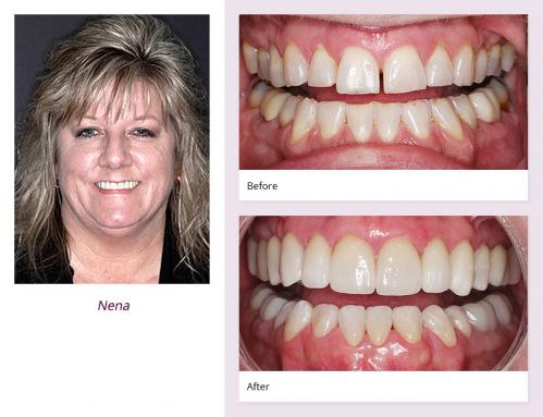 client-Nena-before-after