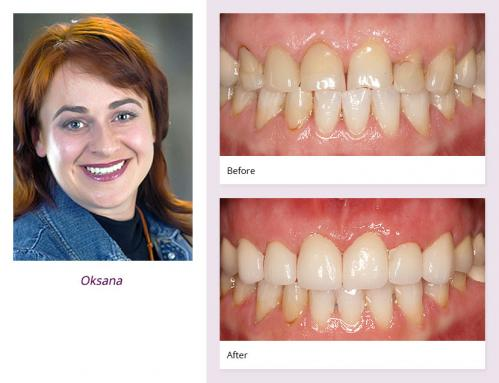 client-Oksana-before-after