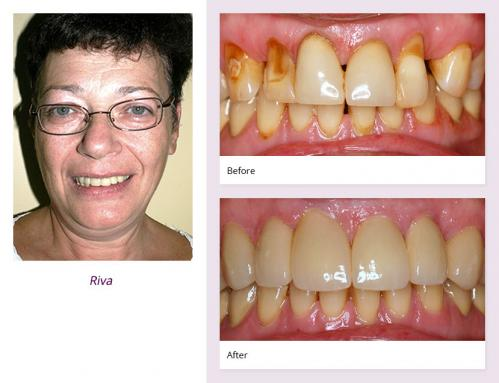 client-Riva-before-after