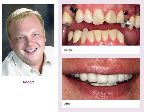 client-Robert-before-after