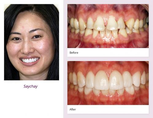 client-Saychay-before-after